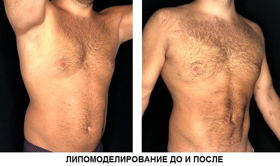 Липоскульптура тела как способ обрести идеальную фигуру 3 - изображение, фото.